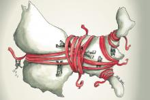 Illustration of the United States being strangled by red tape.